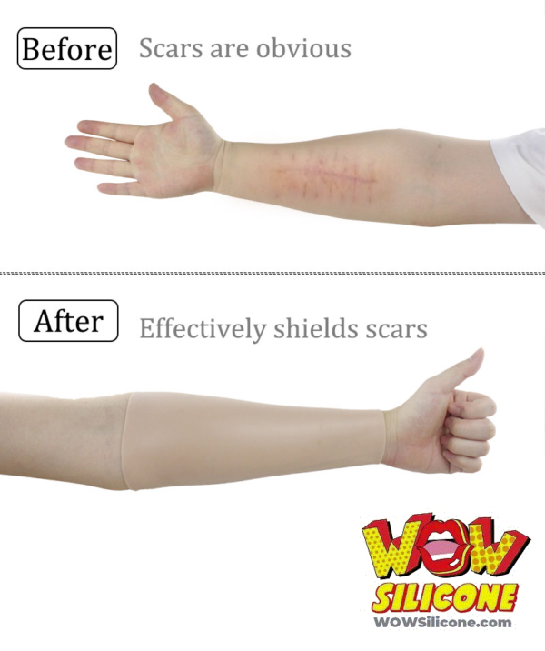 Silicone Arm Sleeves - Before and After